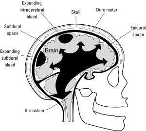 Brain Herniation copy
