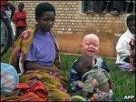Tanzanian Albino Child