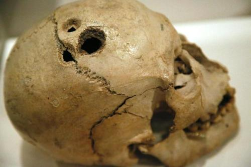 Trepanning involves the drilling of holes through the skull