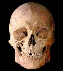 Mesolithic Skull