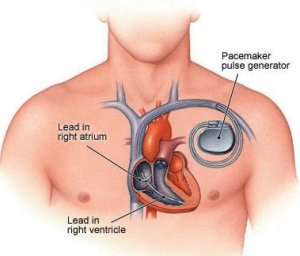 Heart-039-s-Natural-Pacemaker-2