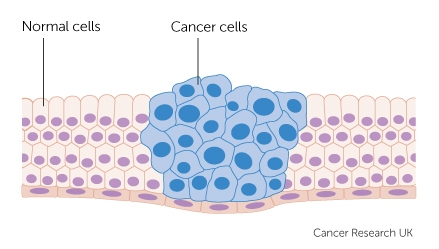 cancer-cells-growing